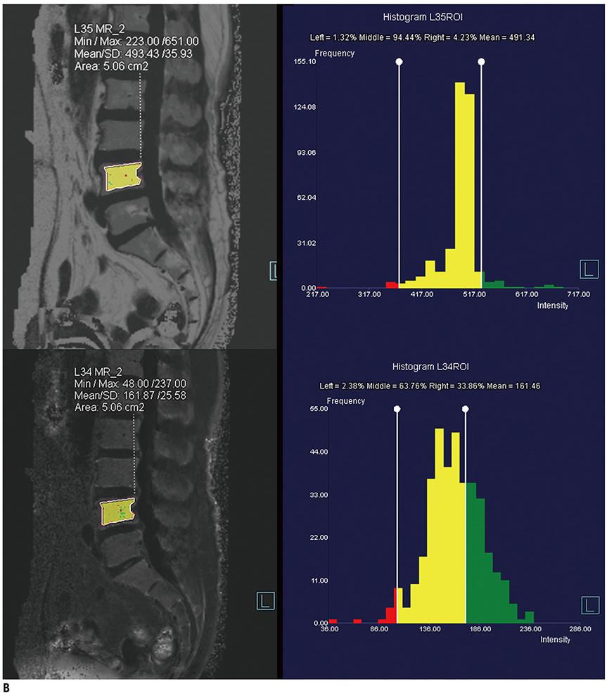 KJR :: Korean Journal of Radiology